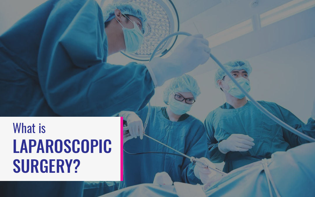 What is Laparoscopic Surgery?