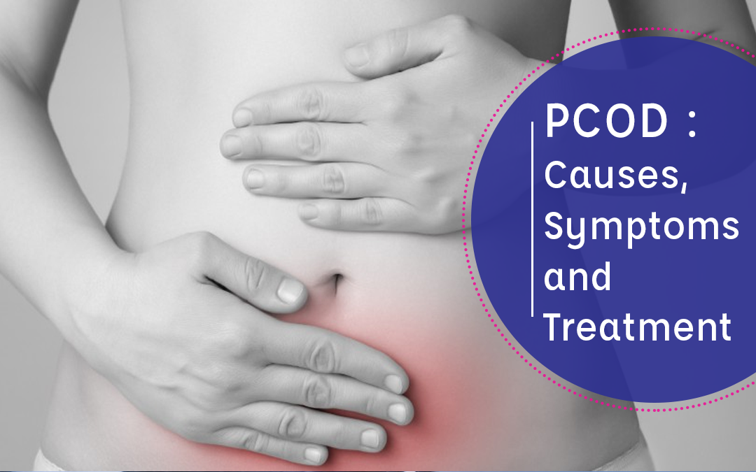 PCOD : Causes, Symptoms, and Treatment