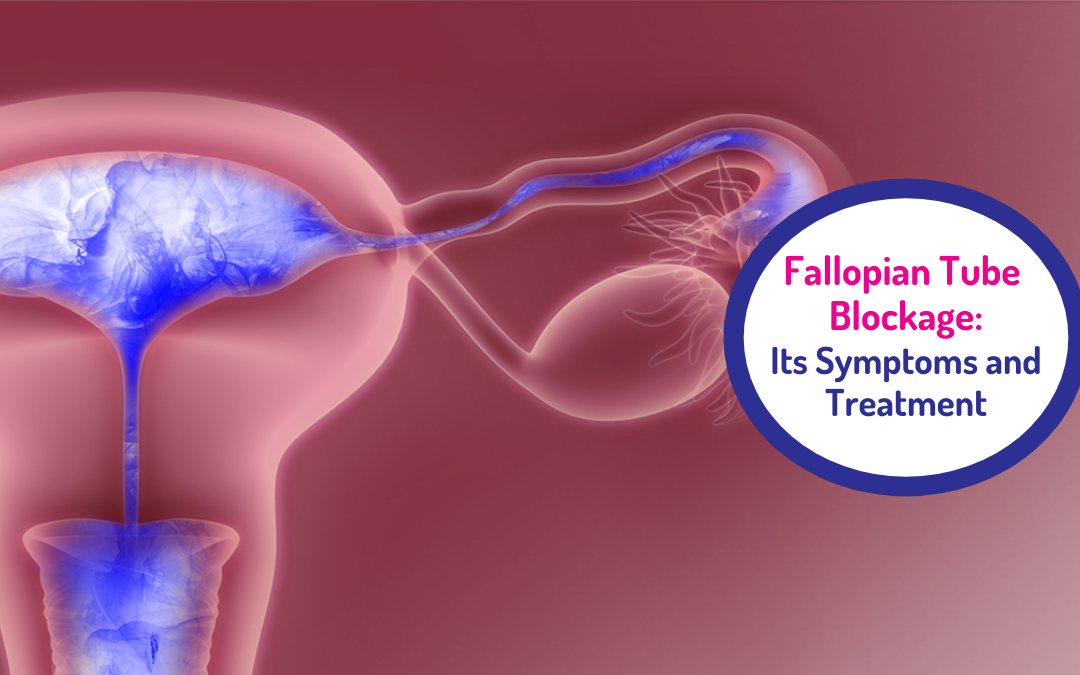 Fallopian Tube Blockage: Its Symptoms and Treatment